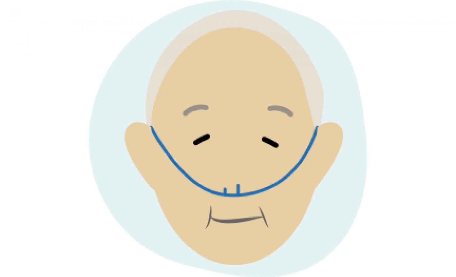 Schematische Darstellung eines Patienten, der Sauerstofftherapie erhält.