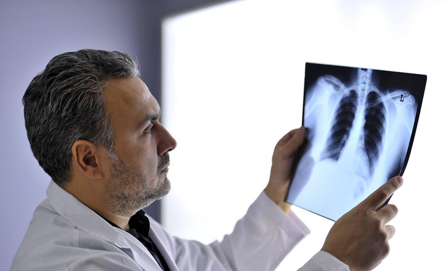 Male doctor assessing x-ray results